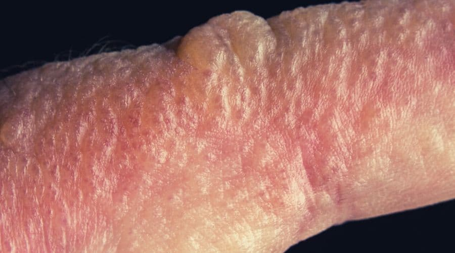 Close up macro poison ivy rash blisters on human skin