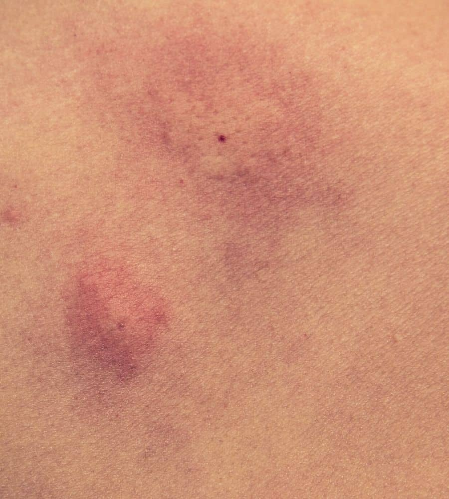close up of mosquito bite on skin vertintext