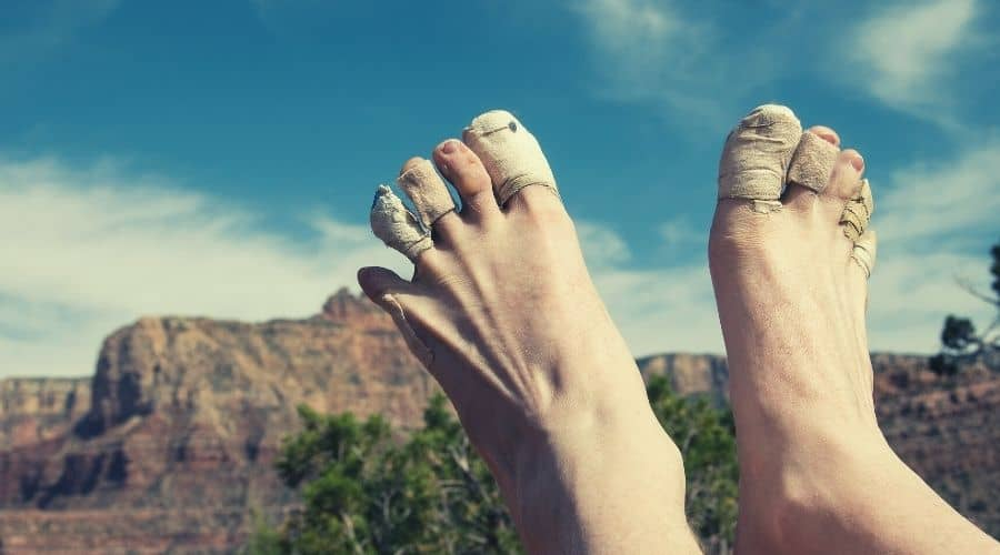 hiker with a bandages around toes